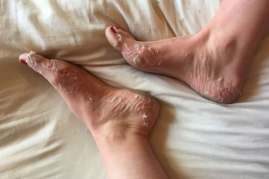 How to Achieve Summer all year long - Skin Republic Foot Peel