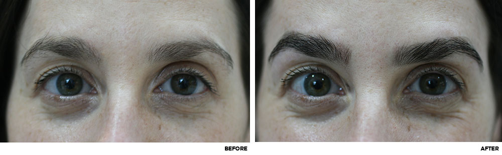 Brow-Lamination-Before-After